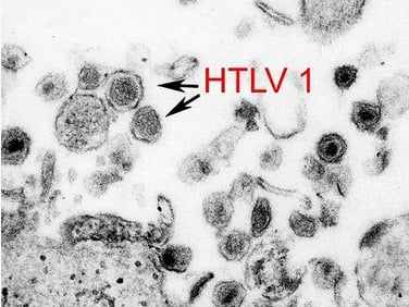 United States Government image, sourced via Outbreak News Today